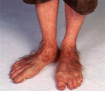Click image for larger version  Name:hobbit_feet.jpg Views:90 Size:24.7 KB ID:73674